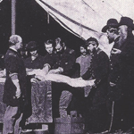 Amputation at Camp Letterman
